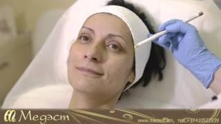 Коррекция мимических морщин. Клиника эстетической медицины и современной косметологии