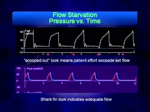 mechanical ventilation waveform analysis youtube