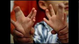 Umweltverschmutzung schadet Chinas Kindern