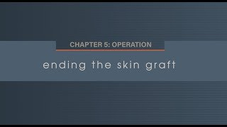 Chapter 5.7 Ending the Skin Graft