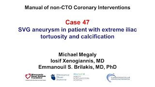 Manual of non-CTO interventions: case 47 - SVG aneurysm and iliac tortuosity