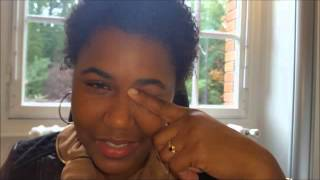 Eye rubbing causes Keratoconus