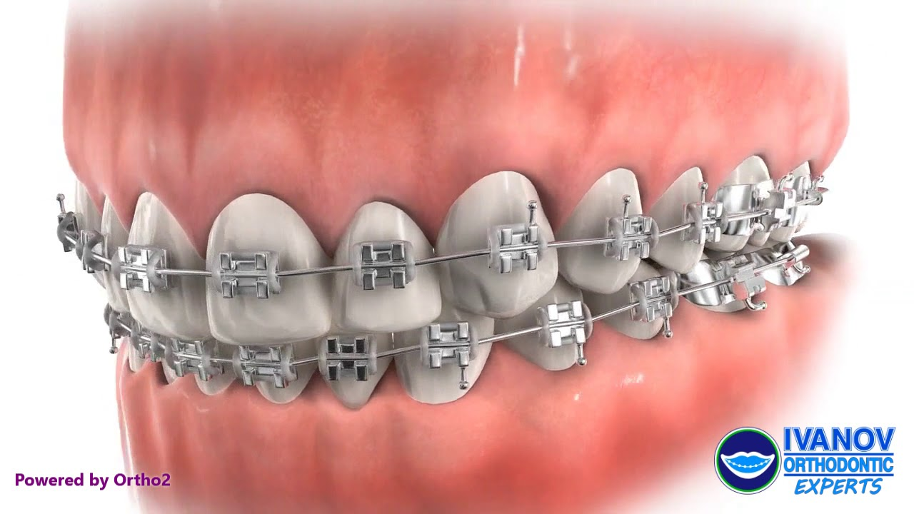 Orthodontic Parts and How They Work · Ivanov Orthodontic Experts