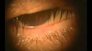 12) 63歳 ベル麻痺による涙目 ベル麻痺 検索動画 12