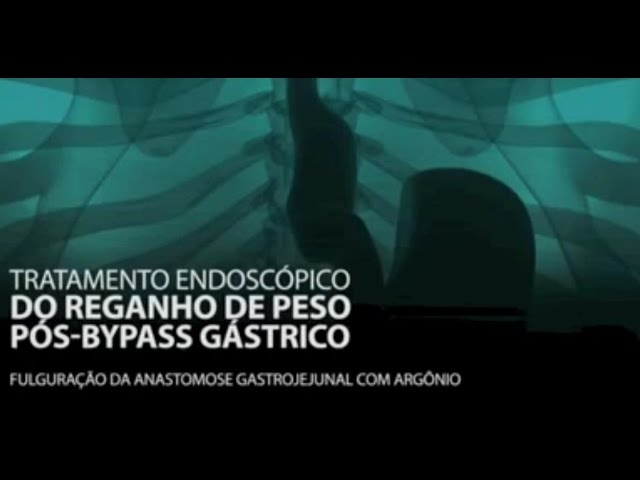 Plasma de Argônio para reganho de peso após Bariátrica - Curitiba/PR