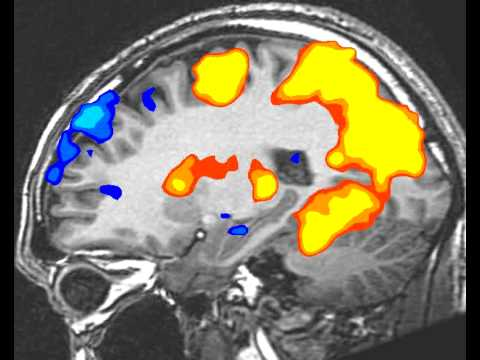 fMRI BrainScan: SideView