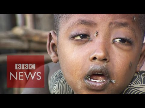 15m people in Ethiopia will need food aid by 2016 - BBC News
