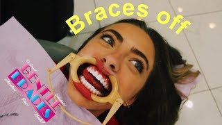 getting my braces off valeria arguelles