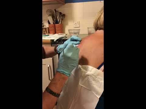 Infected Sebaceous Cyst- Husband to the Rescue - Day 35 Post Lancing - Part  16