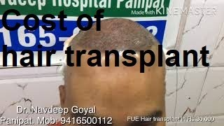 FUE hair transplant cost and place in Rs 30000, Dr Navdeep Goyal, Panipat, Haryana  India