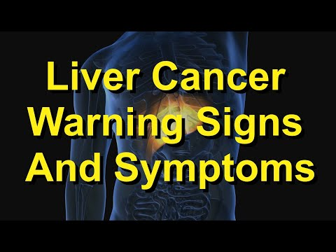 Indications of Liver Cancer That May Fly Individually distinct
