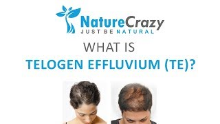 What is Telogen Effluvium (also known as TE)?