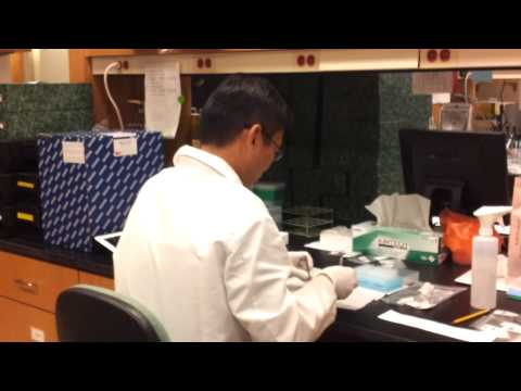 Dry Blood Spot Sample Processing