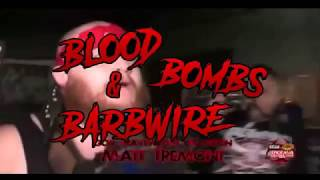 """Blood, Bombs & Barbwire"" Best of Matt Tremont DVD & Digital Download Trailer 