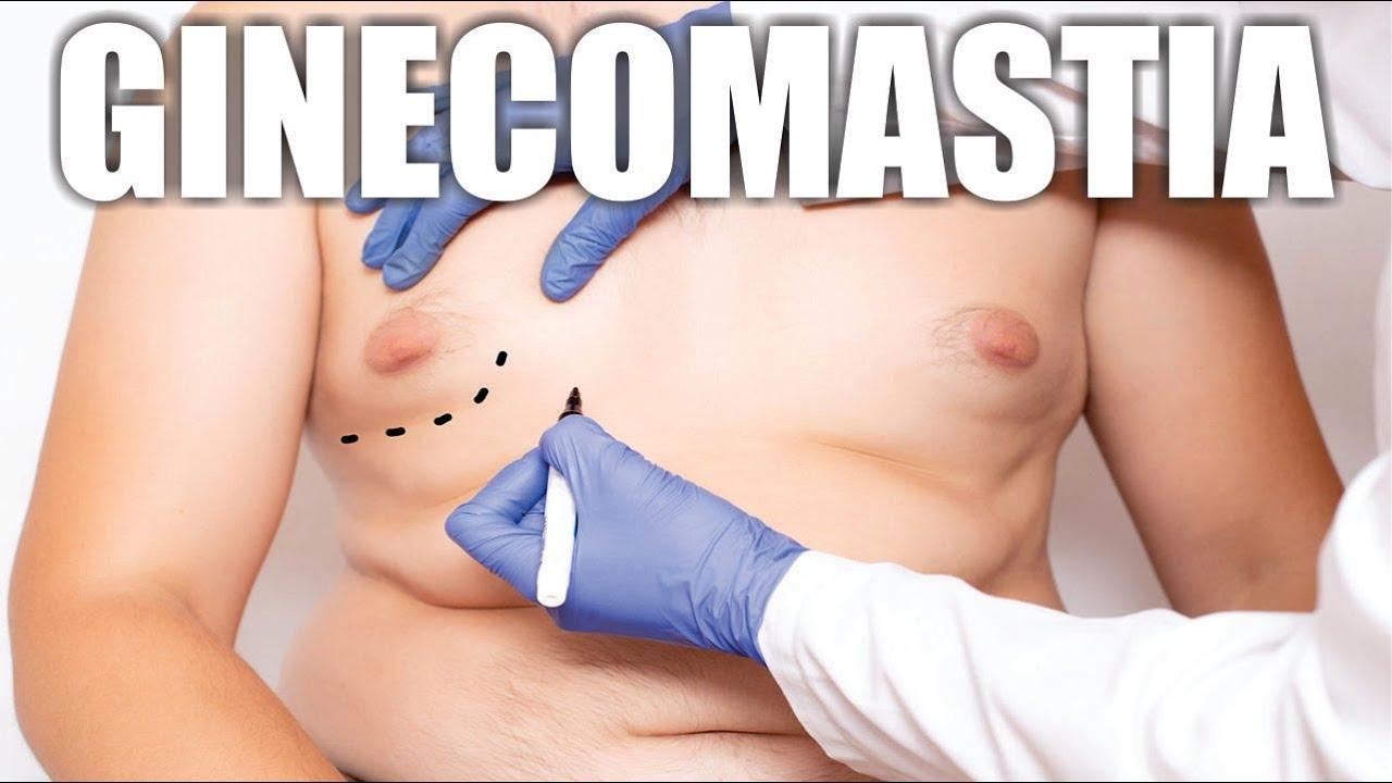 PECHOS ABULTADOS EN VARONES 😧 SOLUCIÓN quirúrgica de la GINECOMASTIA ⭐ PERCY NEVADO ALBÁN