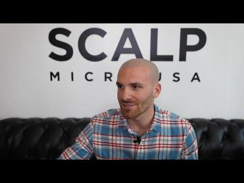 Matt's AWESOME Scalp Micropigmentation Transformation | Scalp Micro USA