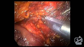 Laparoscopic resection of a large desmoid tumor adjacent to SMA and SMV