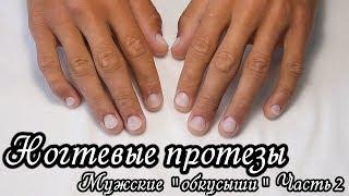 Преображение: Протезирование ногтей. Мужские обкусыши. Часть 2