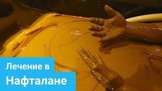 НАФТАЛАН - Уникальная нафталанская нефть, Лечение псориаза, Лечение опорно-двигательного аппарата