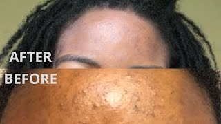 How to treat stubborn acne and get clear skin in 2 weeks | Folliculitis