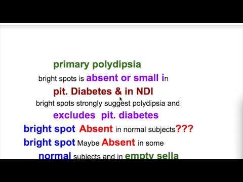 diabetes-insipidus-diagnosis-&-treatment