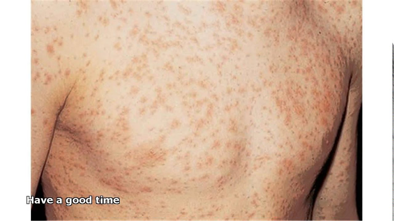 hiv rash - YouTube