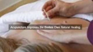 Denver Acupuncture Weight Loss.mp4