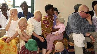 Malawi : les albinos manifestent devant le Parlement