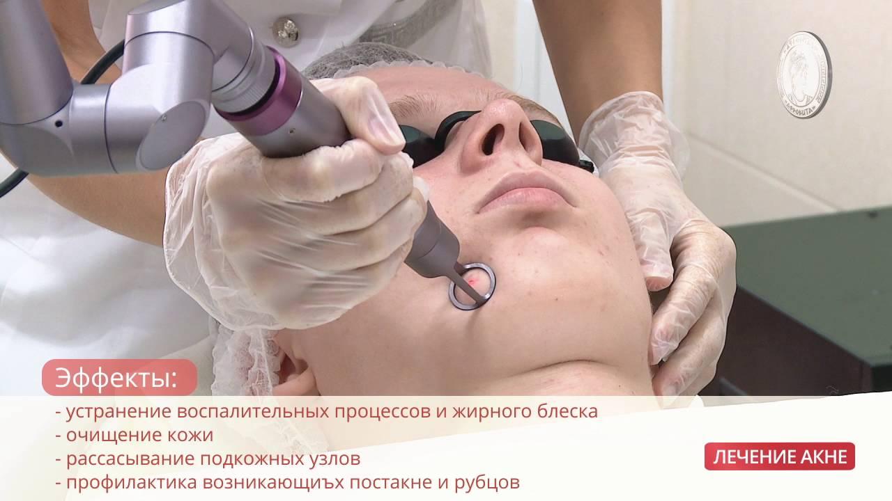Лечение акне клиника в новосибирске