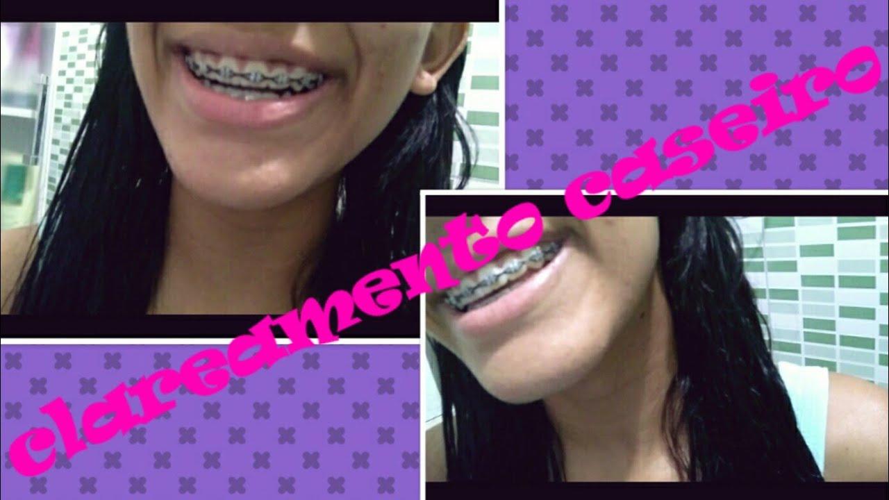 Como Clarear Os Dentes Com Bicarbonato E Limao Especialfimdeano 17