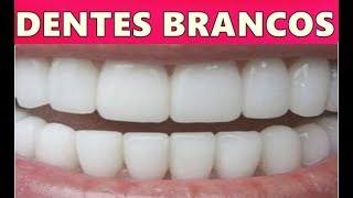 Eles Não Querem que Você Saiba: Como Clarear os Dentes Na Hora, Eliminar Tártaro e Gengivite