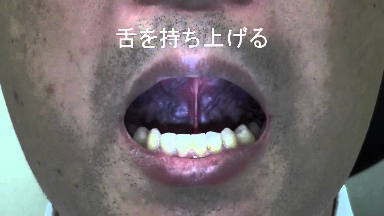 治療 いびき レーザー いびきのレーザー治療・手術