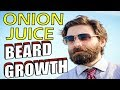 How to Grow a Better Beard with ONION JUICE   NATURAL HAIR GROWTH TRICK