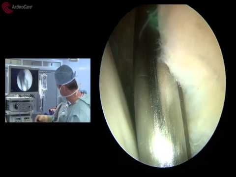 Hip Labral Repair Surgical Video