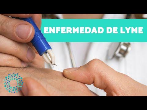 ¿Qué es la ENFERMEDAD DE LYME? - Causas, síntomas y tratamiento