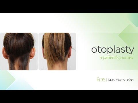 Otoplasty at Eos Rejuvenation with Dr. Nima Shemirani
