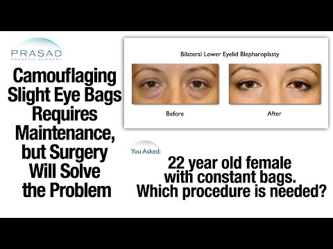 fillers-can-only-camouflage-slight-eye-bags,-but-permanent-removal-requires-surgery