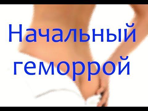 Начальный геморрой: фото, симптомы и как лечить | начального | начальный | симптомы | геморроя | геморрой | лечение | фото
