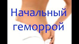 Начальный геморрой: фото, симптомы и как лечить
