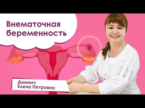 Внематочная беременность. Беременность после внематочной. Домнич Елена Петровна
