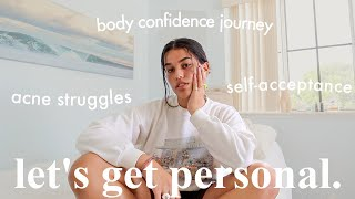Getting Personal: acne struggles, self-acceptance, & body confidence