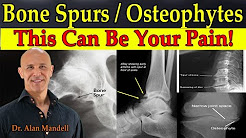 Bone Spurs/Osteophytes - This Can Be Your Pain - Dr Mandell