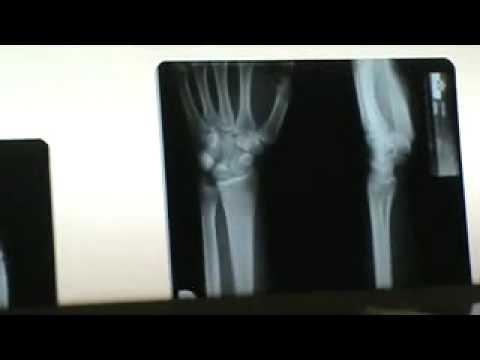 muñeca lateral por pallero - YouTube