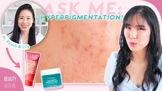 How to Reduce Acne Marks & Hyperpigmentation ft. @Peach & Lily