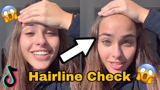 Hairline Check ~ ❗️TikTok Compilation ❗️*extremely funny*😱😂