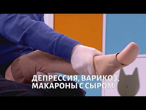 Нарушения ПСИХИКИ, лечение ВАРИКОЗА, макароны по рецепту Гоголя