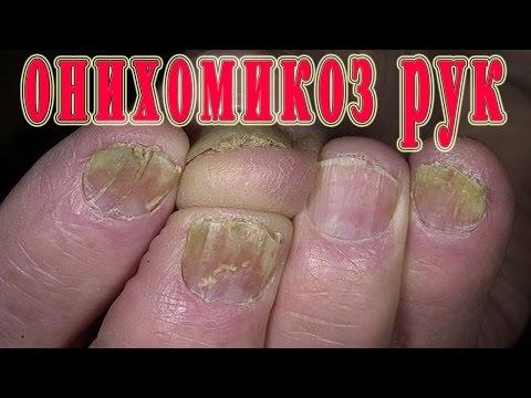 грибок ногтя рук фото