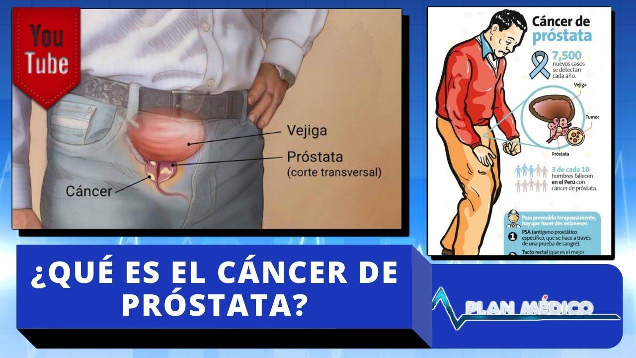 sintomas de prostata en los jovenes de la