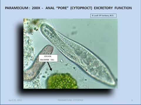Paramecium anal pore