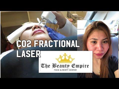 The Beauty Empire - CO2 Fractional Laser | Eshee Legaspino
